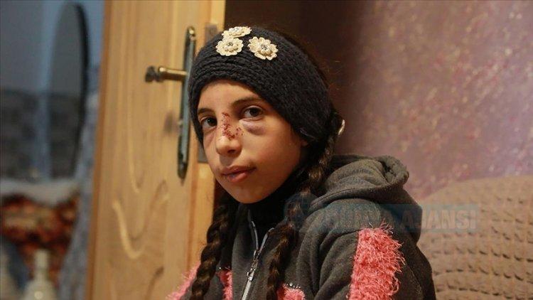 Saldırganlardan zor kurtulan Filistinli küçük kız korku içinde yaşıyor